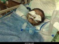 الطفل (( سامر )) يموت .. بسبب عضات أمه المتوحشة