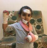 سقوط طفلة من احدى الالعاب بحديقة واصابتها بكسور و رضوض ، ووالدها لـ ( عين الحقيقة ) : من المسئول.؟